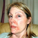 Woman_Face_before